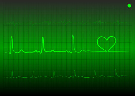 heart ecg trace:   cardiogram with heart of green colour