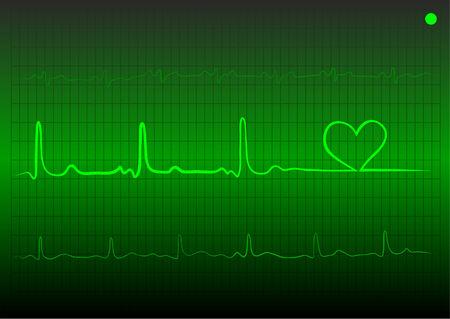cardiogramme avec c?ur de couleur verte