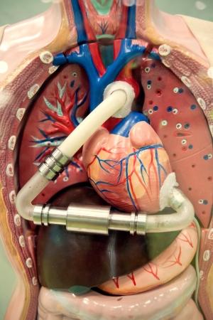 Artificial cardiac pacing device