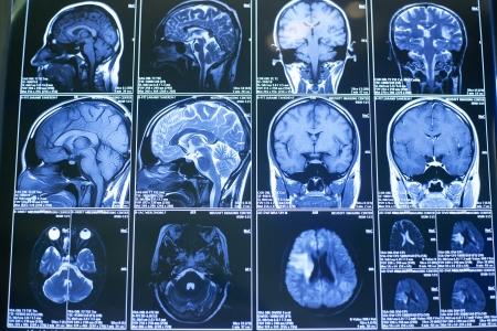 X-rays, the human brain