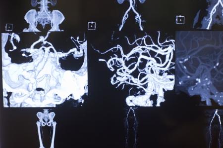 X-ray photograph of human organs Stock Photo