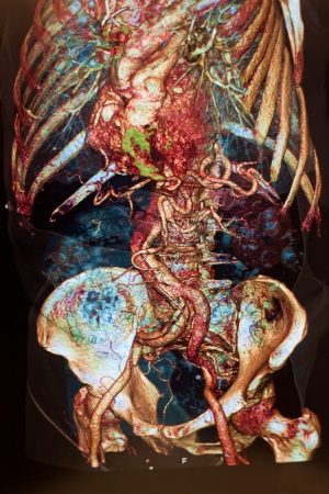 Human anatomy and color photo