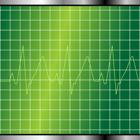 physical fitness: Abstract electrocardiogram monitor background with cardio beat
