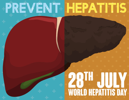 hepatitis prevention: World Hepatitis Day Campaign comparing a healthy liver and sick one for this disease; always choose the prevention and care! Illustration