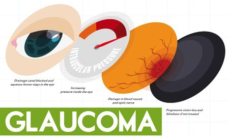 Infographic showing the subsequent effects that may cause the non-treatment of glaucoma disease.