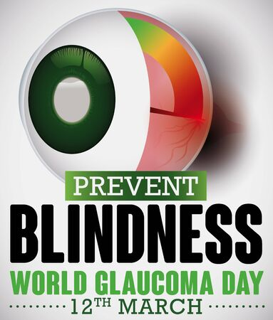 Poster for World Glaucoma Day with a sick eye and manometer, representing the optic nerve damage due high intraocular pressure, that may cause blindness due to this ocular disease.