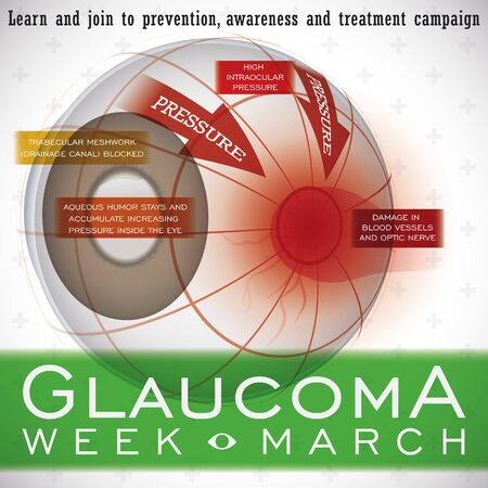 Infographic for World Glaucoma Week with brief explanation of effects of this ocular disease in the eye and the progressive danger of blindness without prevention and treatment.