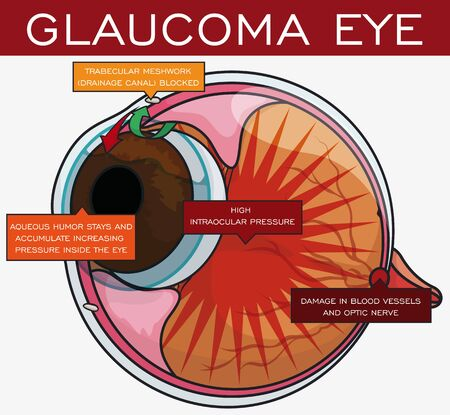 Poster with a basic description of the symptoms and evolution of glaucoma disease in the eye.