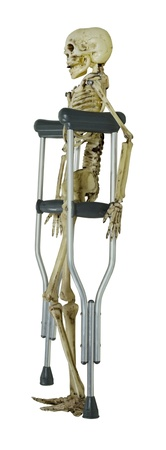 hobble: Bone structure skeleton on a set of crutches - path included Stock Photo