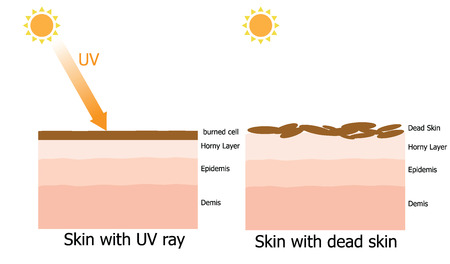 Infographic about cause of dead skin by the UV ray in summer without using sunscreen lotion Çizim