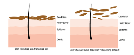 stratum: Infographic about dead skin on human skin and when it is get rid off by peeling skincare product