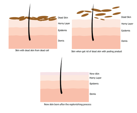 body damage: Infographic about dead skin on human skin and when it is replenished by the process and born the new one