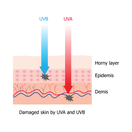 skin burns: UVA and UVB ray damage human skin infographic which UVB damage the epidemis layer and UVB damage the demis layer Illustration