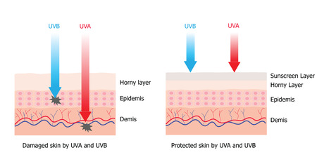 Skin compare between skin with spectrum-boarding sunscreen which protect UVA and UVB  to skin without sunscreen and have damage cell