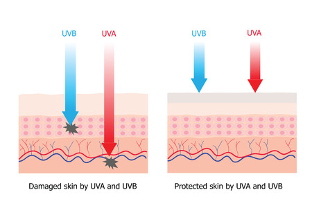 cell damage: Skin compare between skin with spectrum-boarding sunscreen which protect UVA and UVB  to skin without sunscreen and have damage cell