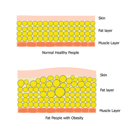 adiposity: Infographic about fat people and healthy people which the obesity people  has big fat cell and got unhealthy