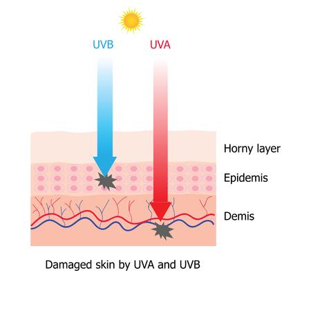 melanin: Skin damaged by UVA and UVB ray infographic