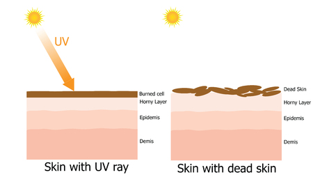 melanoma: Infographic about dead skin on human skin by UV ray Illustration