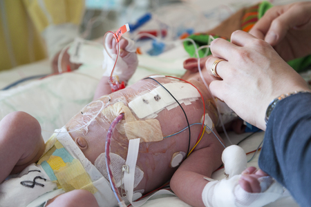 Baby, child intensive care, heart surgery. Stock Photo - 58917777
