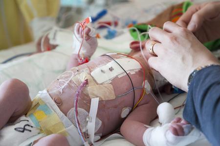 Bebé, niño de cuidados intensivos, cirugía del corazón. Foto de archivo