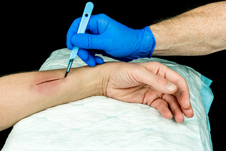 incision: Hand with blue medical glove holding a scalpel making an incision on an arm. Open wound surgery. Close up with black background.