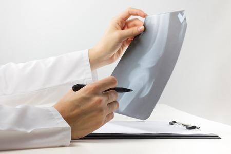 薬と健康管理コンセプト - 脚膝のレントゲンや x 線撮影検査の分析医学のクリップボードと医師 写真素材 - 50803695