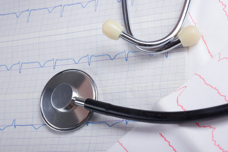 pulse trace: Cardiogram pulse trace and stethoscope concept for cardiovascular medical exam, closeup.