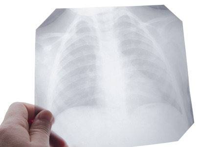 roentgen: Medical stethoscope and x-ray or roentgen image. Close-up shot of lung radiography.