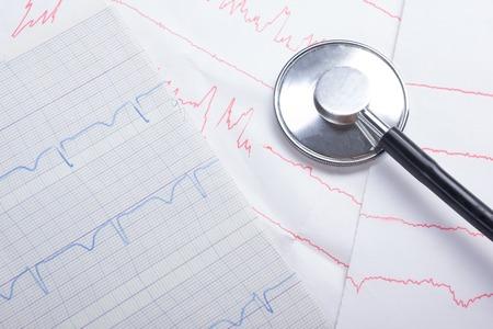 medical exam: Cardiogram pulse trace and stethoscope concept for cardiovascular medical exam, closeup.