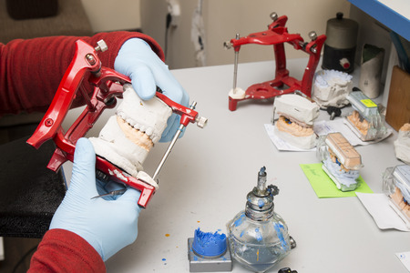Dental technician showing tooth dentures at prosthesis laboratory