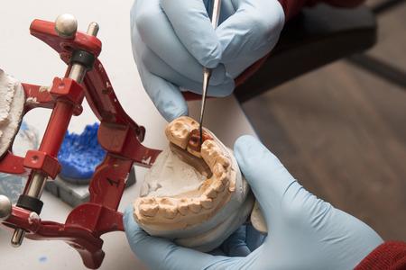 hands of dentist working on a dental implant mold Reklamní fotografie