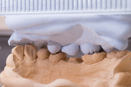 Dental mold and models with prosthetic teeth for cermet in the dental lab