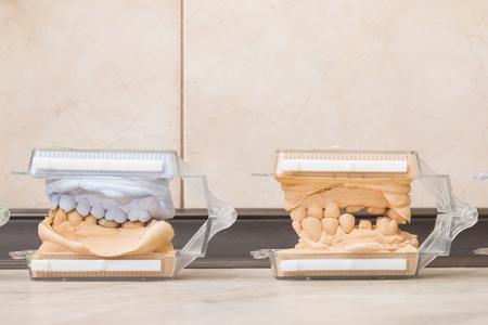 plaster mould: Dental casting gypsum models plaster cast stomatologic human jaws