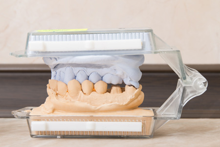 incisor: Dental casting gypsum model plaster cast stomatologic human jaws prothetic laboratory technical shots Stock Photo