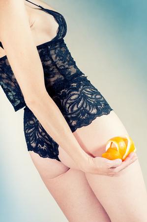 Cellulite - orange skin effect in womens thighs photo