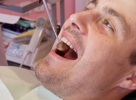 open mouth before oral inspection mirror near by Stock Photo - 8265798