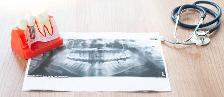 Dentist with dental implant model. Standard-Bild - 132619564