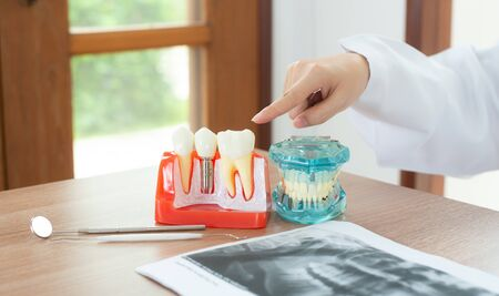 Dentist with dental implant model. Imagens