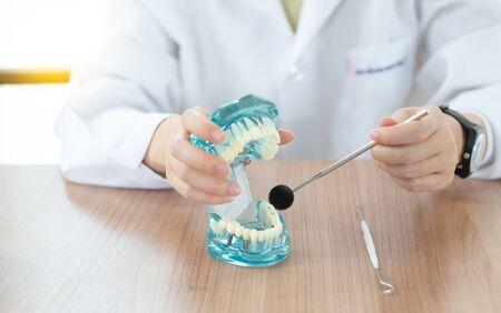 Implant dental model in dental care concept. Standard-Bild - 132606737