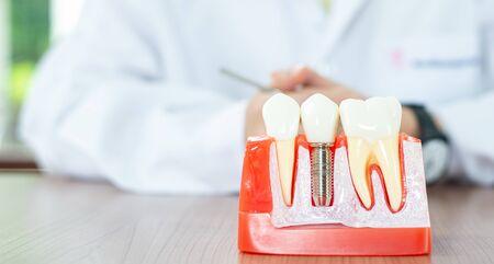 Implant dental model in dental care concept. Standard-Bild - 132011290