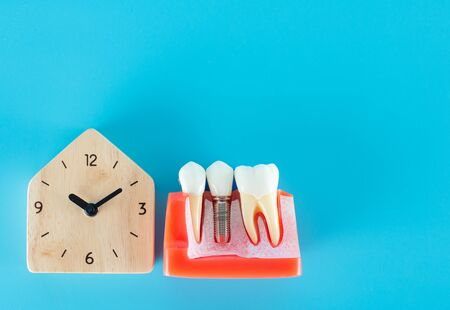 Wooden clock with dental implant model on blue background. Standard-Bild - 132011418