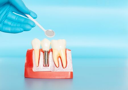 Plastic samples of dental implants compare with natural teeth for patients acknowledged the differences Of both types of teeth. To make decisions before beginning dental implant treatment. Standard-Bild - 133820084
