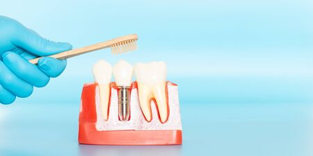 Plastic samples of dental implants compare with natural teeth for patients acknowledged the differences Of both types of teeth. To make decisions before beginning dental implant treatment. Standard-Bild - 133820092