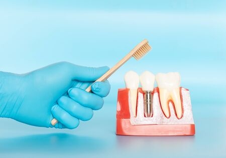 Plastic samples of dental implants compare with natural teeth for patients acknowledged the differences Of both types of teeth. To make decisions before beginning dental implant treatment. Standard-Bild - 133820094