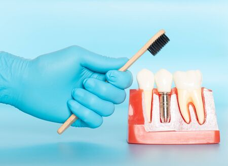 Plastic samples of dental implants compare with natural teeth for patients acknowledged the differences Of both types of teeth. To make decisions before beginning dental implant treatment. Standard-Bild - 133820098