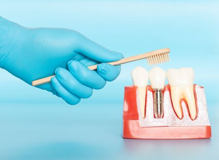 Plastic samples of dental implants compare with natural teeth for patients acknowledged the differences Of both types of teeth. To make decisions before beginning dental implant treatment. Standard-Bild - 133820100