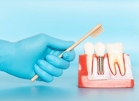 Plastic samples of dental implants compare with natural teeth for patients acknowledged the differences Of both types of teeth. To make decisions before beginning dental implant treatment. Standard-Bild - 133820101