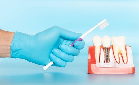 Plastic samples of dental implants compare with natural teeth for patients acknowledged the differences Of both types of teeth. To make decisions before beginning dental implant treatment. Standard-Bild - 133820104