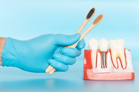 Plastic samples of dental implants compare with natural teeth for patients acknowledged the differences Of both types of teeth. To make decisions before beginning dental implant treatment. Standard-Bild - 133819766