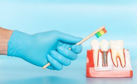 Plastic samples of dental implants compare with natural teeth for patients acknowledged the differences Of both types of teeth. To make decisions before beginning dental implant treatment. Standard-Bild - 133819776